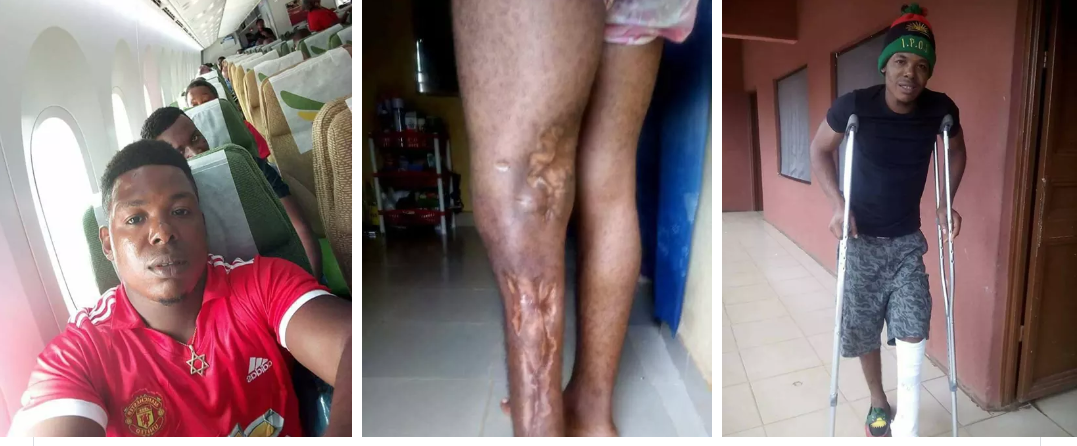 Screenshot_2018-03-09-18-03-52.png-Ipob Sponsors Medical Treatment For Member Who Was Shot In The Leg By Nigerian Army